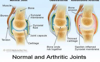 Серумни биомаркери за ревматоиден артрит