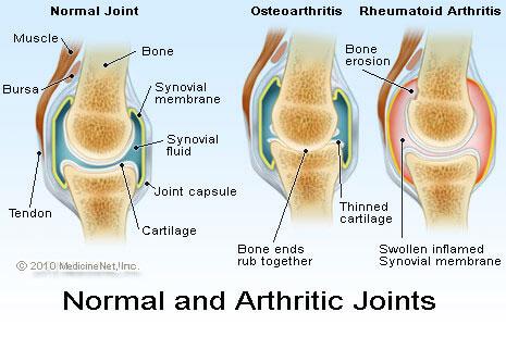 Ревматоиден артрит - тестове и изследвания за диагностициране, проследяване и лечение