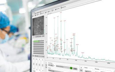 Нов апарат обработващ над 300 проби на час в Лаборатория Рамус